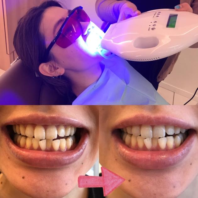 歯のホワイトニング(*´∀`*)
